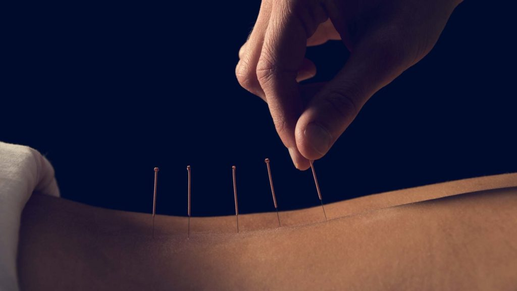 Acupuncture » Bozeman Acupuncture